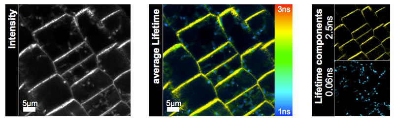 Arabidopsis root cells transformed with a GFP-tagged PIN2 variant
