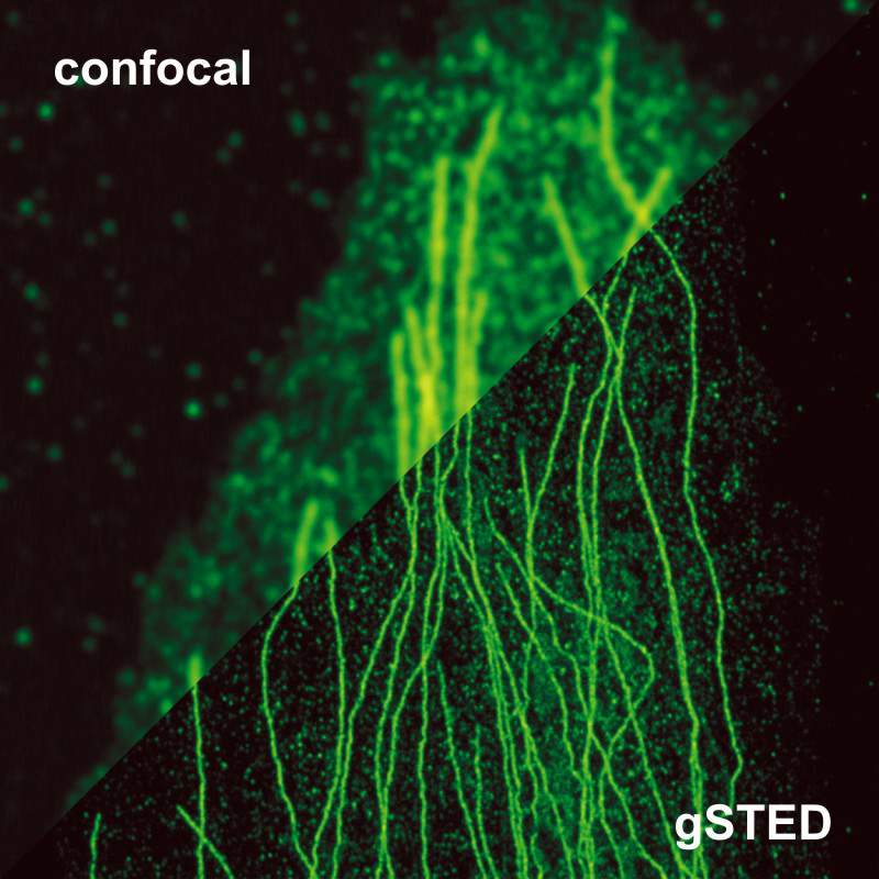 STED image of Tubulin in comparison to a standard confocal image