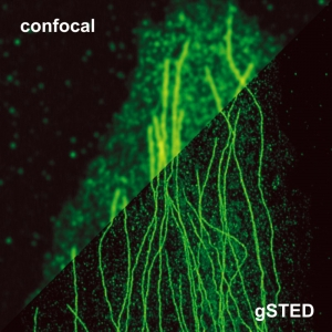 Image Stimulated Emission Depletion Microscopy (STED)