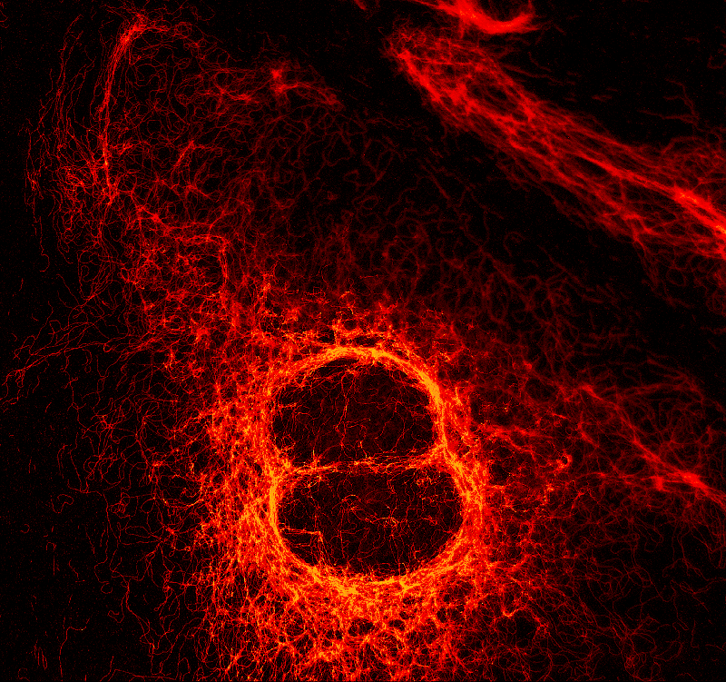 STED image of Vimentin fibers