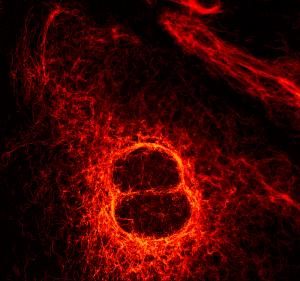 Solea - STED image of vimentin fibers